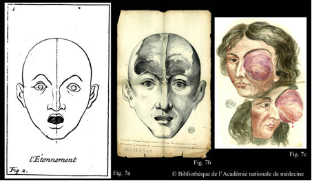 The Eye of the Surgeon: Bodily Images from the Collection of the Royal Academy of Surgery of Paris, 1731–93