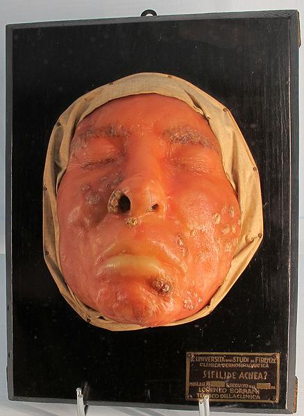 Poésie et médecine au XIXe siècle. Les traductions françaises de <i>Syphilis</i> (1530) de Fracastor